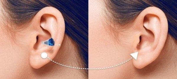 Im Ohr Hörgerät von audibene