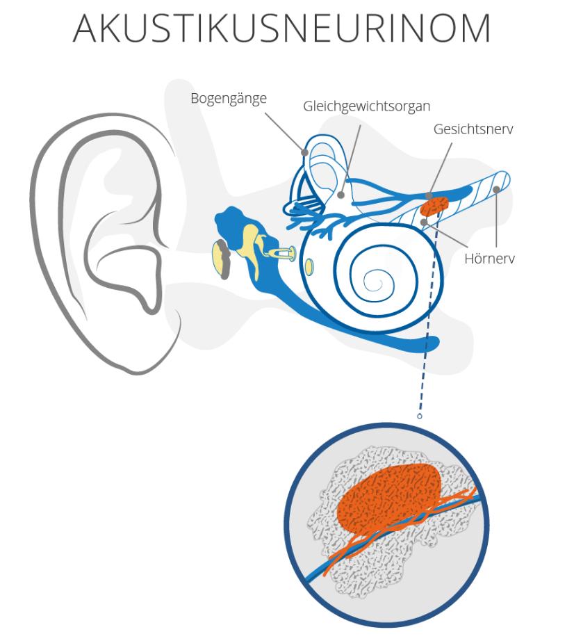 akustikusneurinom