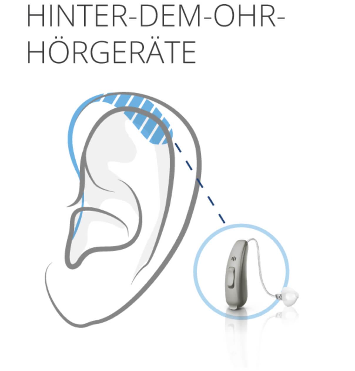 hinter dem Ohr Hörgeräte