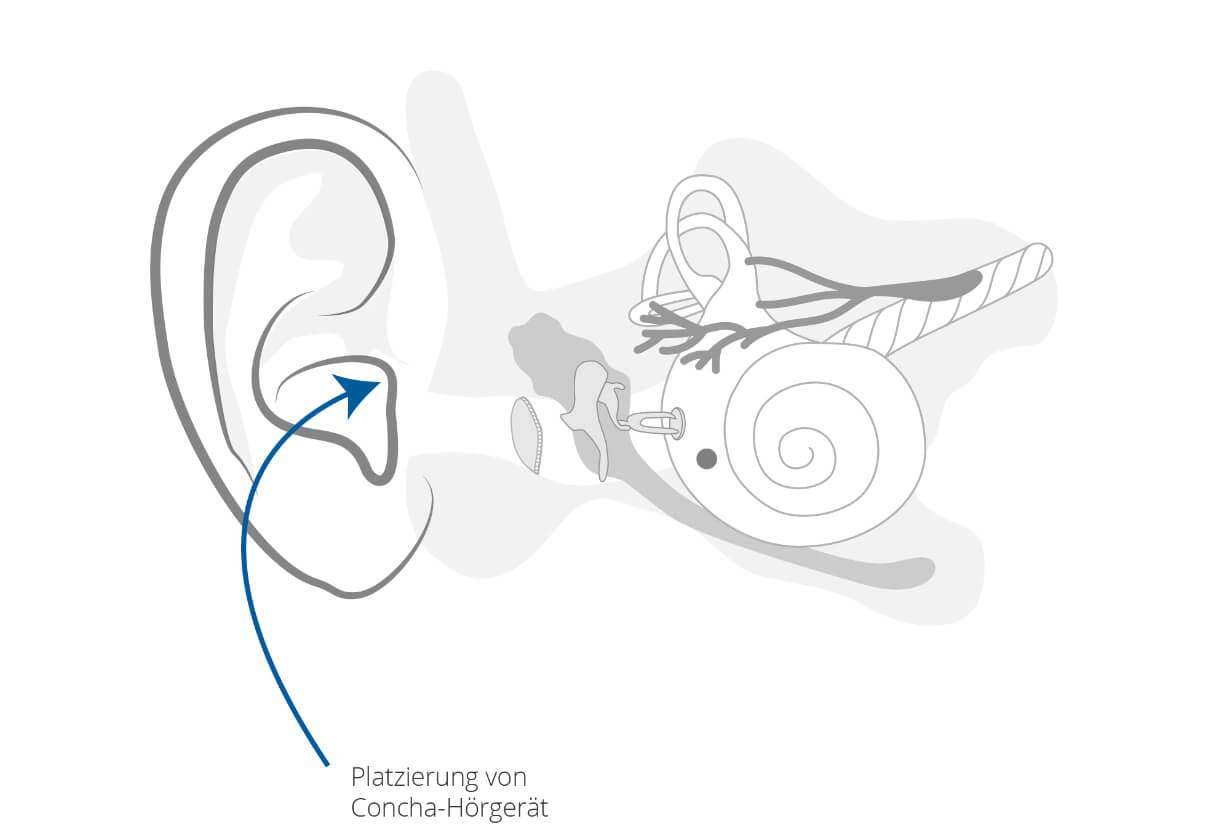 Concha-Hörgeräte