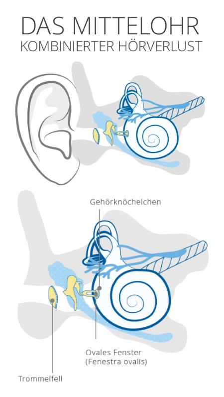 Mittelohr kombinierter Hörverlust